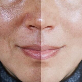 how to reduce pores on face permanently