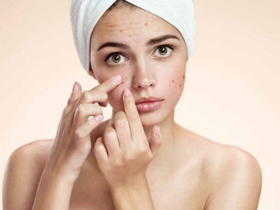 How to cover pitted acne scars with makeup