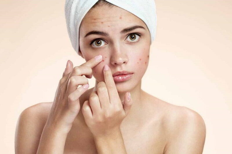 Cover Pitted Acne Scars With Makeup