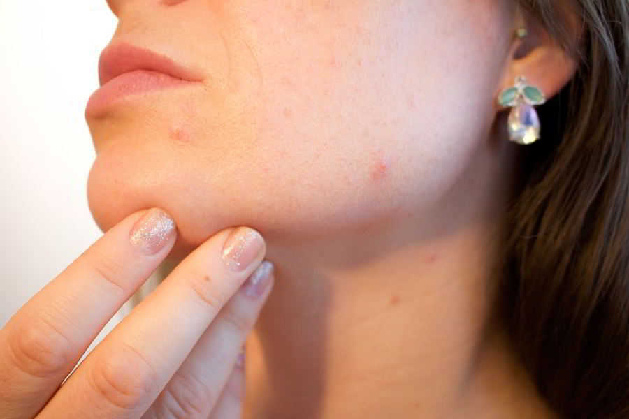 Most Common causes of pimples